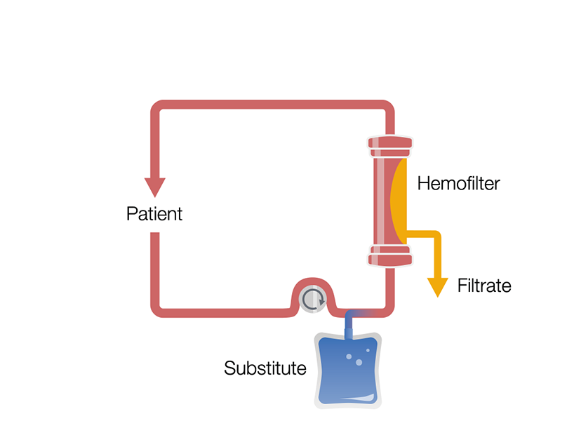 Continuous Veno-Venous Hemofiltration in pre-dilution (Pre-CVVH)