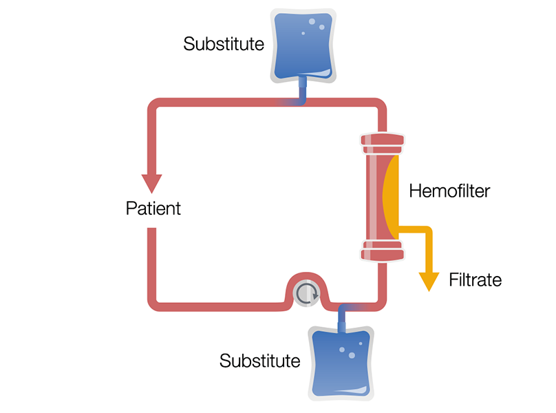 Continuous Veno-Venous Hemofiltration in pre-and postdilution (Pre-Post CVVH)